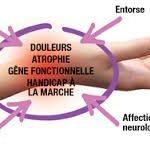 Algodystrophie (ou SDRC) et réflexothérapie