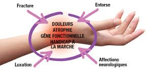algodystrophie du bras